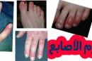 تورم الأصابع في فصل الشتاء (عضة الصقيع )أسبابها وعلاجها والوقاية منها