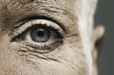 علاج جفاف الجلد حول منطقة العين