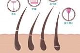 طرق إزالة الشعر الزائد بدون ألم بوصفات طبيعية